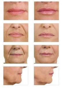 Art7-Batch-5567-Kw7-Acido hialuronico en la cara
